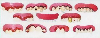 """""""Funny Teeth"""", 11 verschiedene,"""